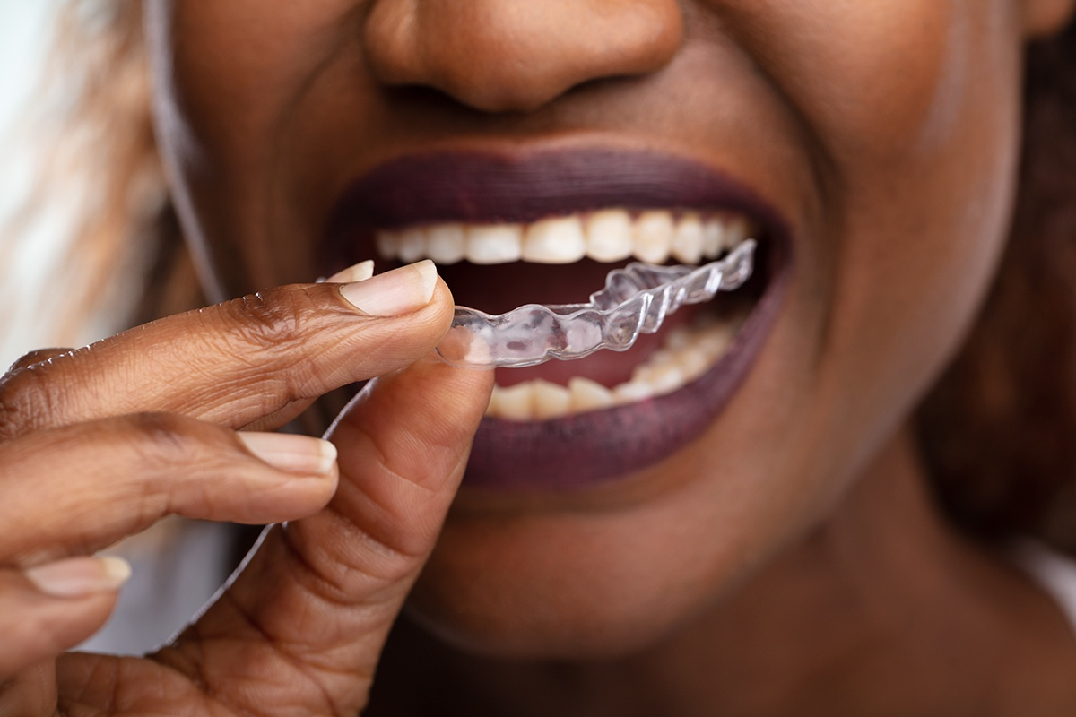 what is invisalign